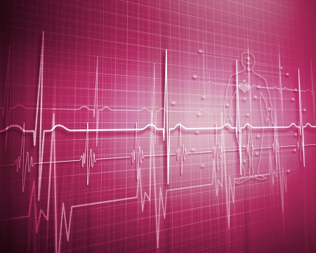 A medical background with a heart beat   pulse with a heart rate monitor symbol Stock Photo - 17056715