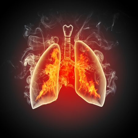 Schematic illustration of human lungs with the different elements on a colored background  Collage  Stock Illustration - 18745810