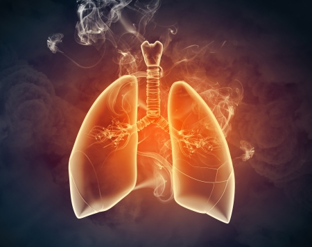 Schematic illustration of human lungs with the different elements on a colored background  Collage Stock Illustration - 18793503