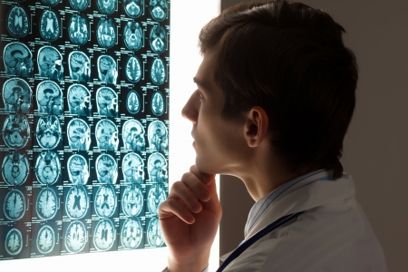 brain injury: Image of male doctor looking at x-ray results