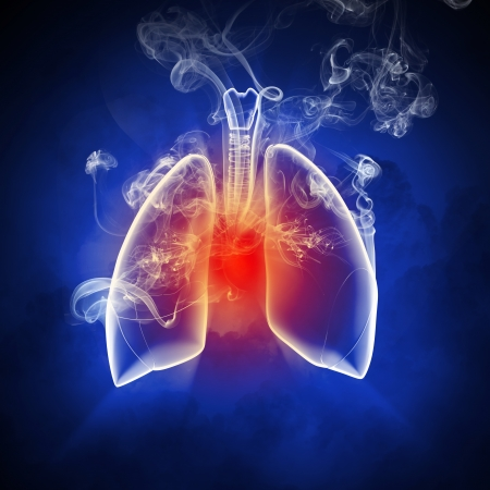 medicine chest: Schematic illustration of human lungs with the different elements on a colored background  Collage  Stock Photo