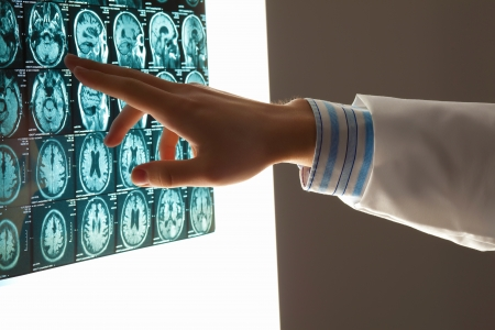 Close-up image of doctor s hand pointing at x-ray results photo