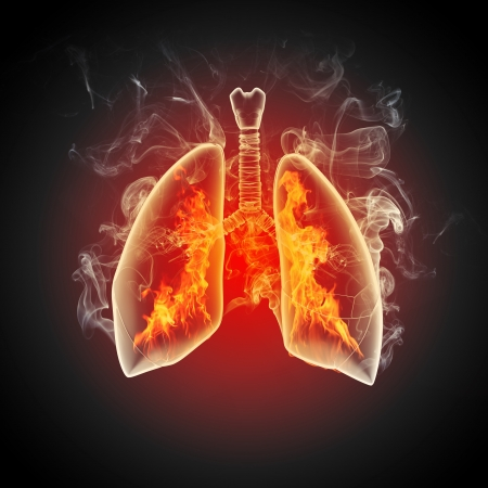Schematic illustration of human lungs with the different elements on a colored background  Collage  Stock Photo