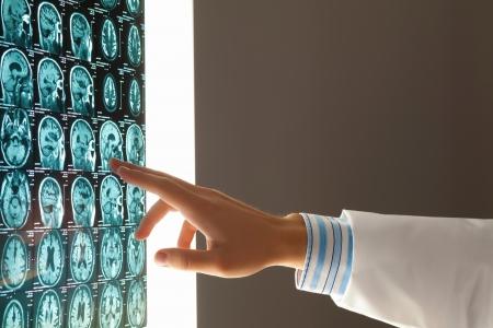 X 線の結果を指して医師の手のクローズ アップ イメージ