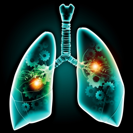 dolor de pecho: Los pulmones humanos con mecanismos Salud y medicina