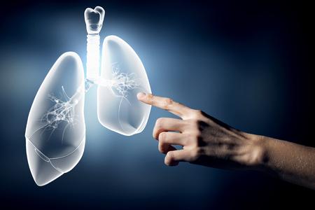 Nahaufnahme der Hand berühren Lungen Zeichen Standard-Bild