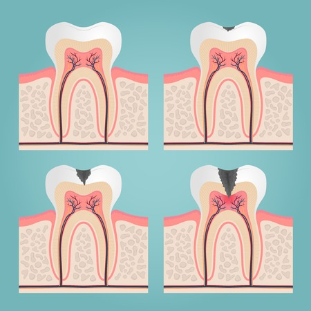 cavities: tooth anatomy and damage, cut teeth in the gums vector illustration