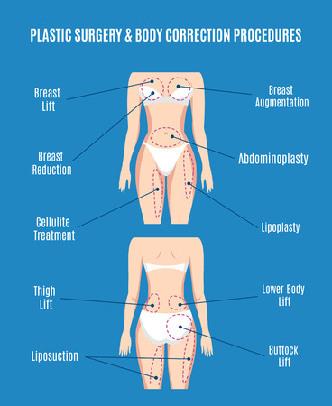 breast: Plastic surgery and body correction vector illustration. Lifting plasty and liposuction, cellulite removal and fat lose. Torso and augmentation, abdominoplasty patient, beauty health