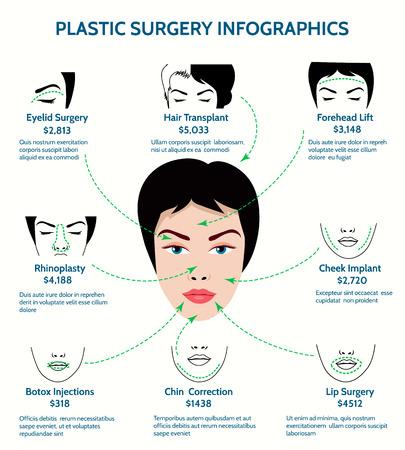 nariz: Infografía cirugía plástica. Medicina y barbilla, la frente y la mejilla, phinoplasty y la rinoplastia, procedimiento de corrección, ilustración vectorial