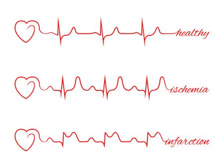 El corazón late cardiograma conjunto vaus. Electrocardiograma y el pulso de miocardio, la salud línea, la medicina cardiología ilustración