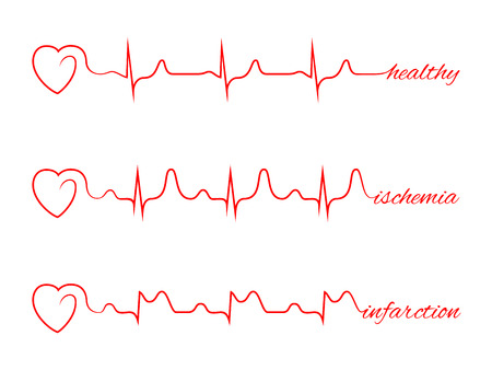 infarction: Heart beats various cardiogram set. Electrocardiogram and infarction pulse, line health, cardiology medicine illustration