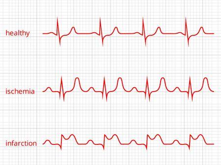 Heart cardiogram charts set. Healthy heart rhythm, ischemia, infarction.  Vettoriali
