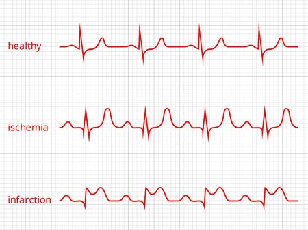 Heart cardiogram charts set. Healthy heart rhythm, ischemia, infarction.  Illustration