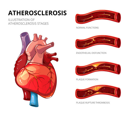 Atherosclerosis. Fibrous plaque formation. Medical human, health graphic, thrombus in vessel. Vector illustration infographic Illustration