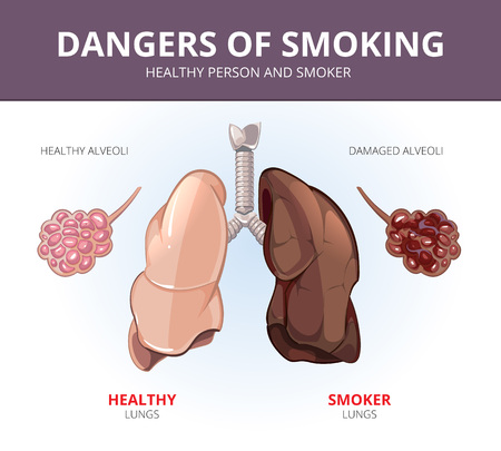 aparato respiratorio: Pulmones y alveolos de una persona sana y fumador. Ilustración de órganos, respiratorias anatomía, la ciencia y la enfermedad. Vector diagrama médica