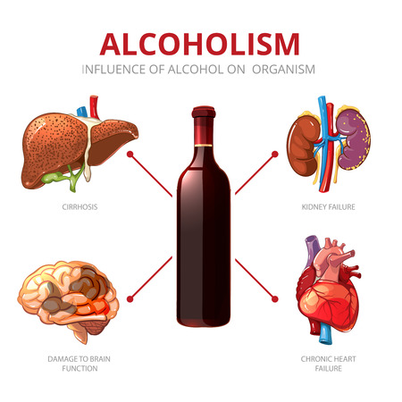 brain function: Long-term effects of alcohol. Organism function and brain damage, failure kidney illustration. Alcoholism vector infographic Illustration