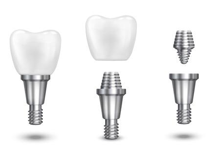 Implant zęba. Implant zęba stomatologiczne i zdrowie, zdrowe implant, ilustracji wektorowych