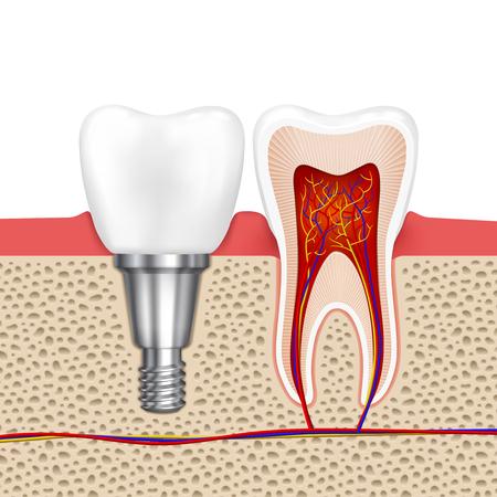 dientes sanos: Los dientes sanos y los implantes dentales. Implante dental, diente salud odontología médica, ilustración vectorial
