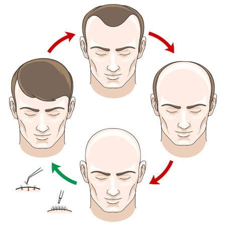 man hair: Stages of hair loss, hair treatment and hair transplantation. Hair loss, bald and care, health haor, human hair growth, vector illustration