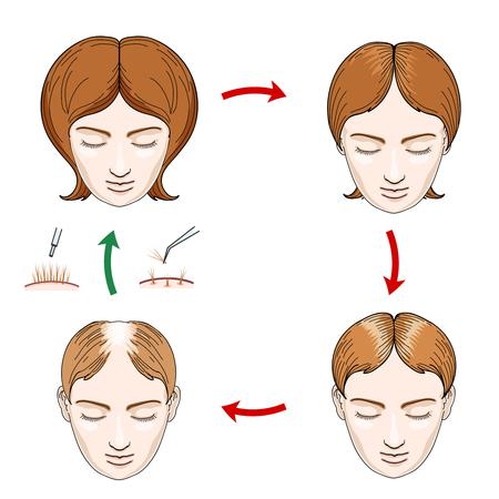 calvo: pérdida de cabello en la mujer y el trasplante de cabello iconos. pérdida de la mujer de cabello, cuidado del cabello, mujer cabeza, cuero cabelludo humano, el crecimiento del cabello, ilustración vectorial