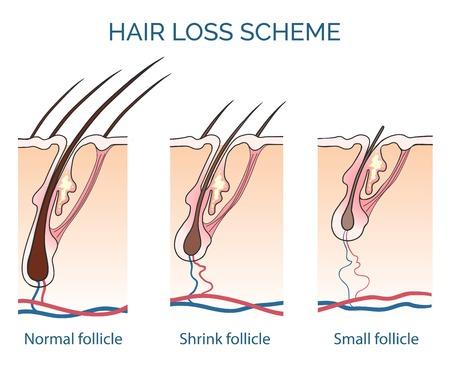hair loss: Hair loss scheme. Loss hair, growth hair problem, health hair. Vector illustration