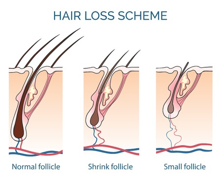 Hair loss scheme. Loss hair, growth hair problem, health hair. Vector illustration