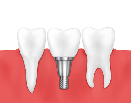screws: Dental implant and normal tooth vector illustration. Stomatology prosthesis, implantation implant dental Illustration