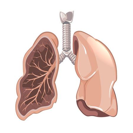 airway: Human lungs anatomy, cancer vector diagram. Lung illness, cancer lung, anatomy lung human, lung organ illustration