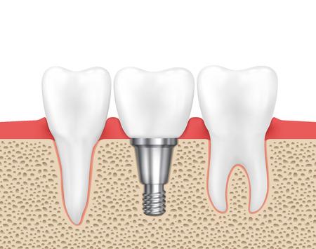 implanted: Dental human implant. Medical human dental, implant dental, dentistry implant tooth, dental inplant vector illustration