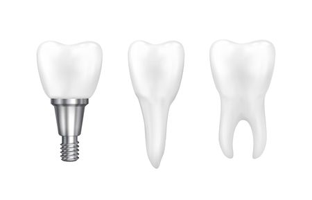 implantation: Tooth implants and normal tooth isolated on white background. Screw implant, dental inplant tooth, bone implantation, tooth root inmplant illustration vector