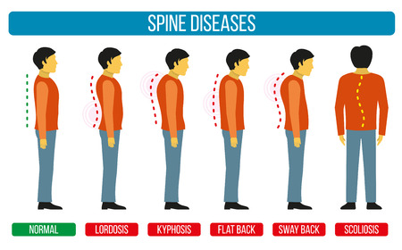 diagnosis: Body posture defect. Vector infographics of spine diseases. Scoliosis and lordosis medical diagrams. Spine backbone, spine diagnosis, diagnostic spine symptom, design spine diseases illustration
