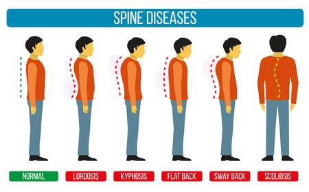 Lichaamshouding defect. Vector infographics van de wervelkolom aandoeningen. Scoliose en lordose medische diagrammen. Spine backbone, stekel diagnose, diagnostische stekel symptoom, ontwerp wervelkolom ziekten illustratie