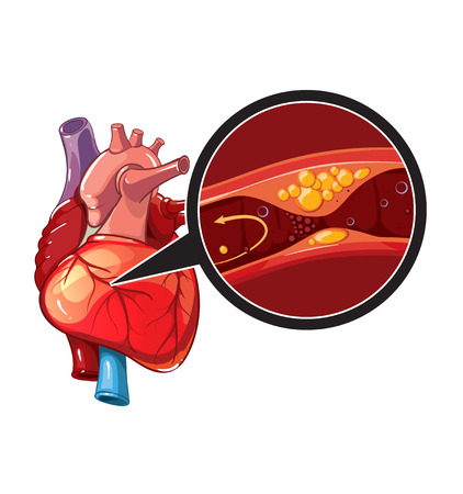 heart health: Myocardial infarction. Illustration of human heart in myocardial. Vector heart for banner Illustration
