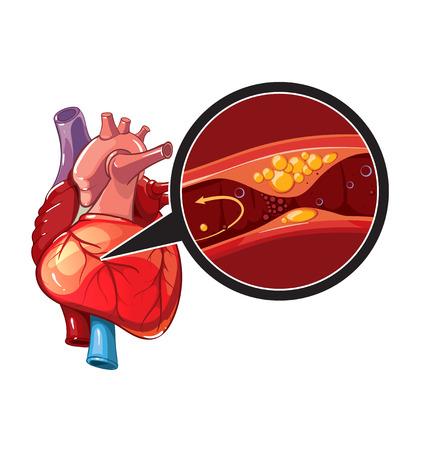 Myocardial infarction. Illustration of human heart in myocardial. Vector heart for banner Illustration