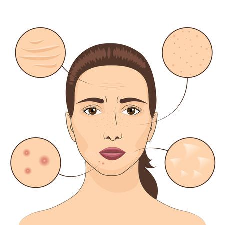 girl face: Woman skin problem illustration. Female face with skins problematic areas. Illustration