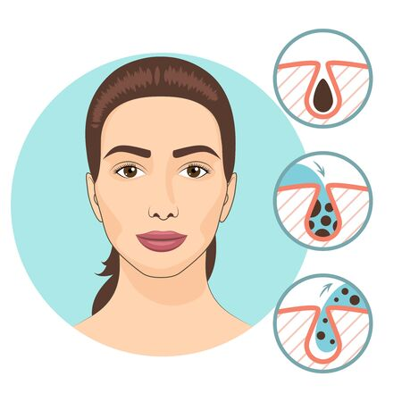 skin care woman: Woman facial treatments. Skin problems and face care vector illustration