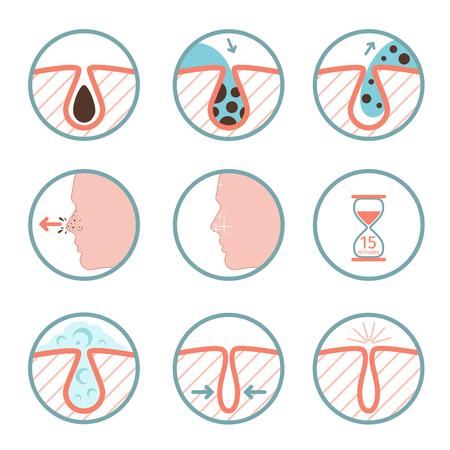 Gezichtsbehandelingen pictogrammen. Behandeling van huidziekten, talgverwijdering en poriën die vectorillustratie schoonmaken Stockfoto - 72665922