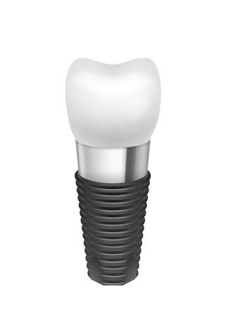 titanium: Metal assembled tooth implant