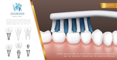Realistic dental health concept with teeth cleaning or brushing process and tooth implants vector illustration Ilustração