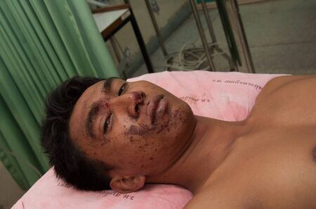 explotion: YALA, THAILAND - FEBUARY 23: Unidentified soldier injury from time bomb explode on bed in emergency room on Feb 23, 2012 at Yaha Hospital Yala, Thailand