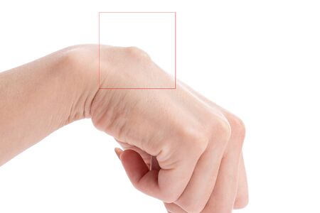 Females hand with big cyst hygroma circled in red square isolated on white 免版税图像