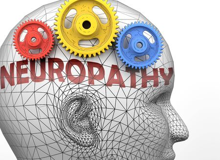 Neuropathy and human mind - pictured as word Neuropathy inside a head to symbolize relation between Neuropathy and the human psyche, 3d illustration Stock Photo