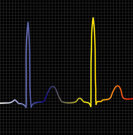 cardioid: An ecg display to show beat or computer related information Stock Photo