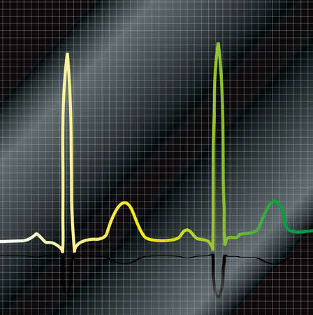 cardioid: A ecg that show beat with a black and silver background Stock Photo