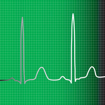cardioid: A green ecg monitor with beat information