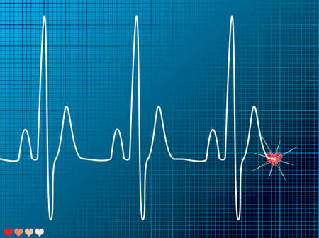 Medical abstract ecg monitor overlayed on an technical grid Stock Photo - 1391562
