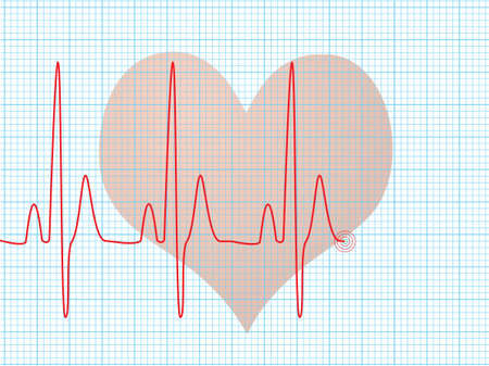 medical abstract: Medical abstract background showing an ecg heart beat over a technical grid