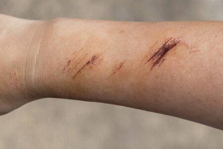 La plaie forme des croûtes sur la main et le bras. La blessure se produit pendant les blessures de la femme en tombant sur la route. Banque d'images