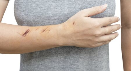 The wound form scabs on hand and arm. The wound happen during woman Injuries from falling down on road. 写真素材