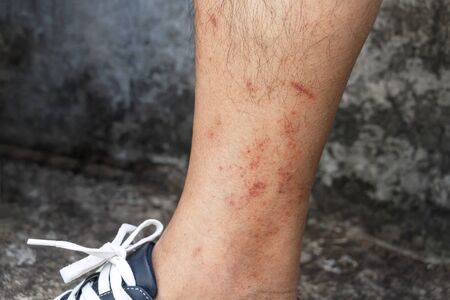 Skin disease winter. Healthcare dry cracking skin and rash red of leg on during weather cold. Dermatologist and treatment medication concept.